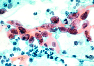 Slide showing cervical cancer cells, stained red, among other cells, stained blue.