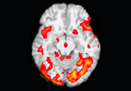 "An fMRI scan indicates what regions of the brain are active during a particular task. This scan shows activity in one ""slice"" of a person's brain as he calls out the names of everyday objects. Columbia University PICS"