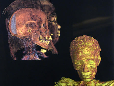 CT scans of the profile and frontal view of the Gilded Lady reveals the shape of her skill and face.