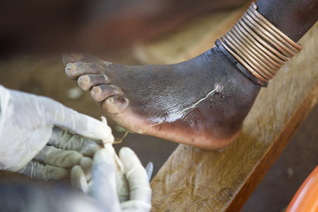 Extracting a Guinea worm is a slow and painful process. Some historians believe the medical symbol known