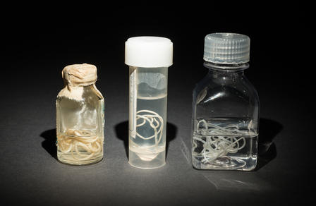 Guinea Worm Specimens