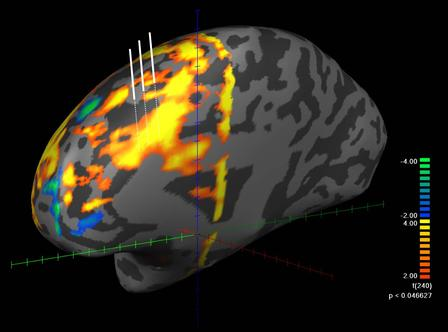 In this functional MRI image, the brain is engaged in a decision-making task. The areas shaded yellow to red represent the highest brain activity and the areas shaded blue to green, the lowest brain activity. Taken during a neurosurgical procedure, the three white lines slightly above the brain represent three individual neurons whose activity was recorded during the procedure.