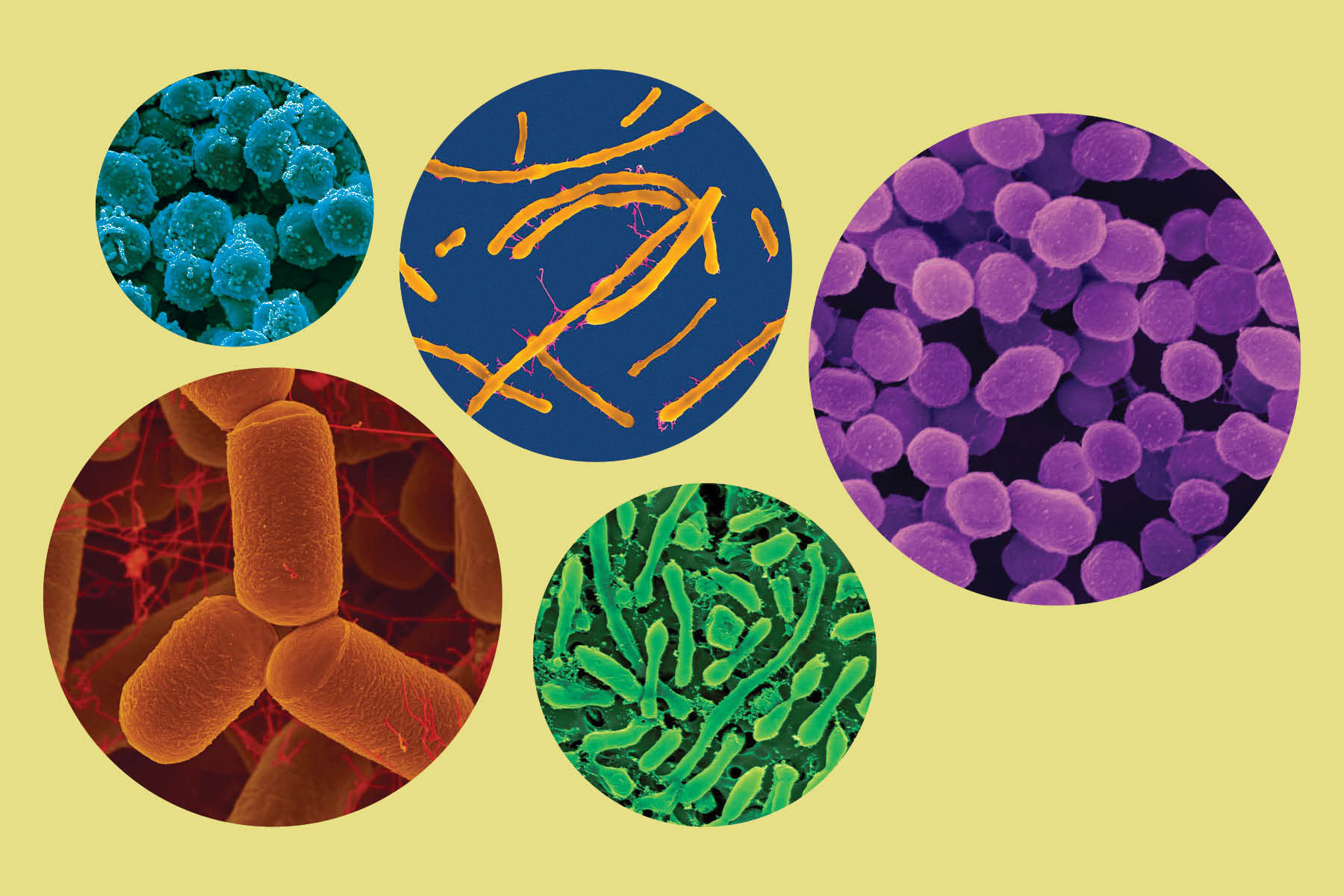 5 circles showing various types of Archaea: some are long, some round, and some pill-shaped.
