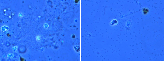 On the left, magnification of the liquid control sample showing specks of bacteria and grass particulate; on the right, the bacillus-shaped bacteria Cedecea davisea