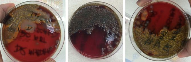 Klebsiella pneumoniae on blood agar