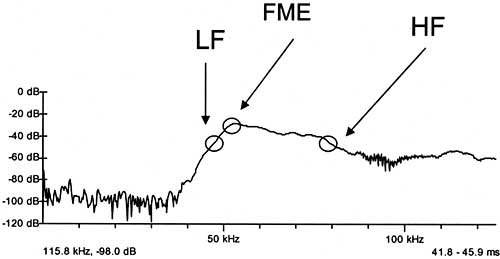 Chart 3: An example of a call in the fast Fourier transform (FFT) display showing how lowest frequency (LF), highest frequency (HF), and frequency of maximum energy (FME) were measured. The horizontal axis is measured in kilohertz (kHz), and the vertical axis is measured in decibels (dB).